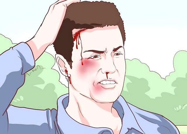 एक सिर चोट के चरण 2 के लक्षण पहचानें शीर्षक